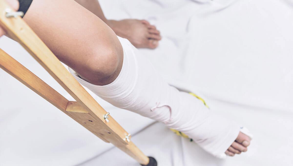 Rafforzare le ossa dopo un infortunio  - di cosa vale la pena occuparsi?